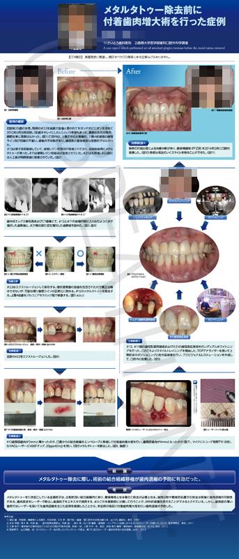 20151111日本歯科審美学会ポスター